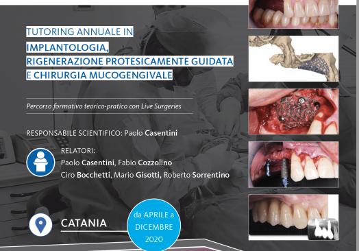 Tutoring annuale in implantologia, Rigenerazione Protesicamente Guidata e Chirurgia Mucogengivale: Percorso formativo con Live Surgery