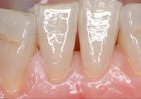 LA GESTIONE DEI TESSUTI MOLLI PARODONTALI E PERI-IMPLANTARI: LA CHIRURGIA PLASTICA PARODONTALE – corso teorico pratico Parodontologia- Dott. Alberto Fonzar