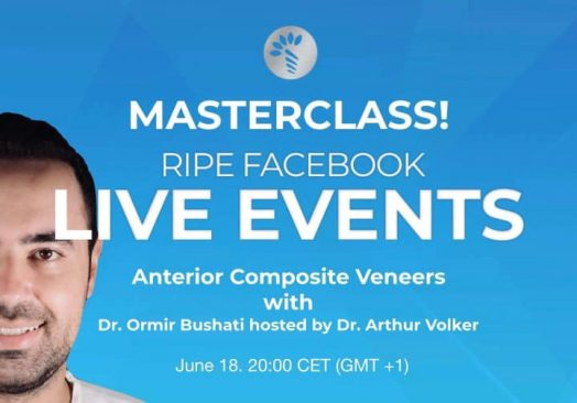 Multiple ways in Anterior Composite Veneers.
