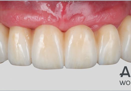 An Update on Digital Implantology and Prosthodontics