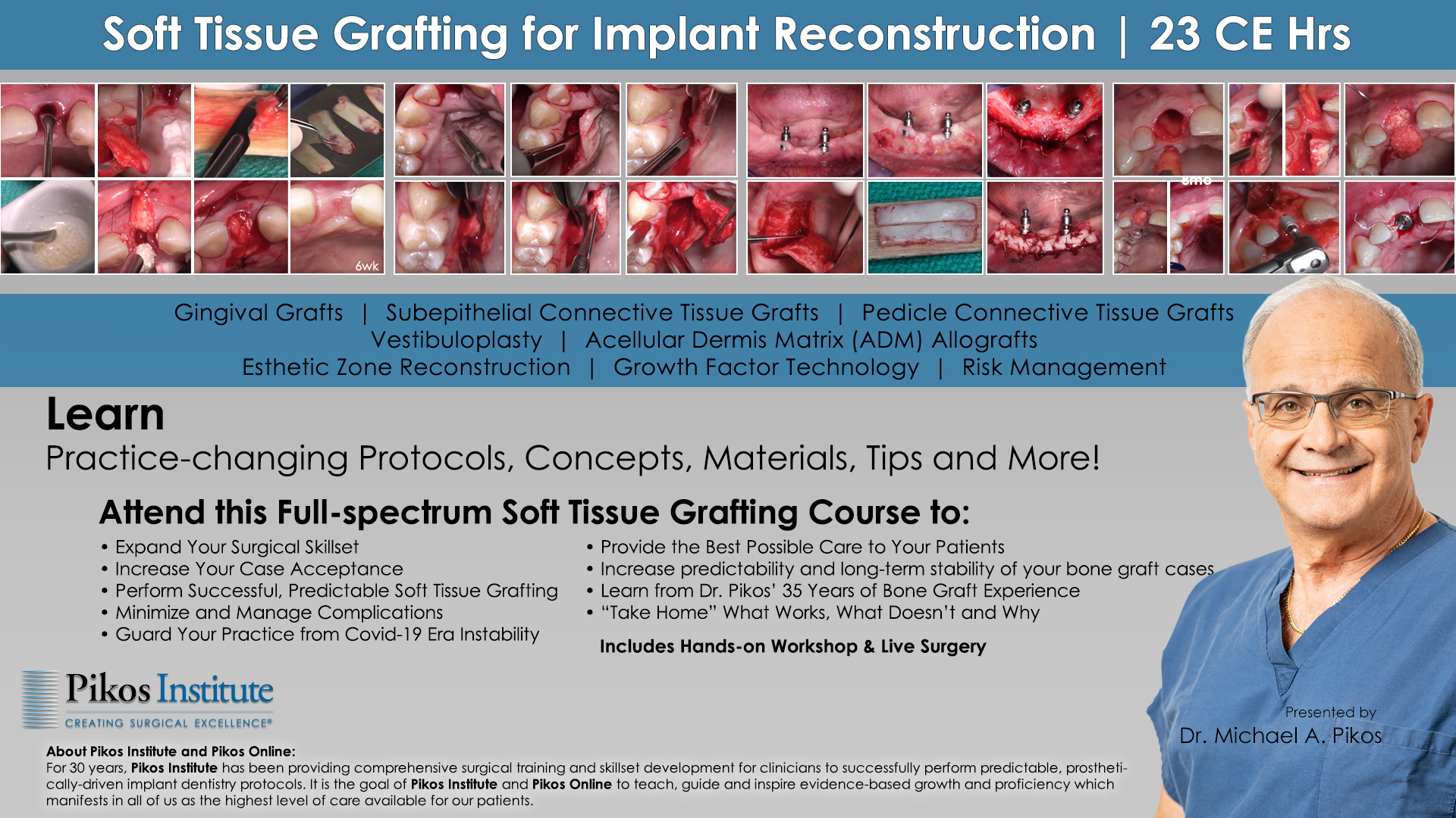 Contemporary Soft Tissue Grafting for Implant Reconstruction
