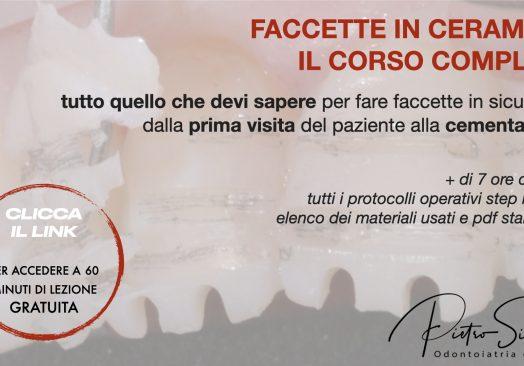 Faccette in Ceramica – Il Corso Completo (tutto quello che devi sapere, step by step)
