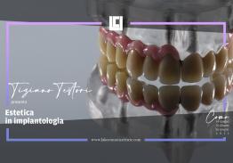 Corso di estetica in implantologia a livello dei settori frontali