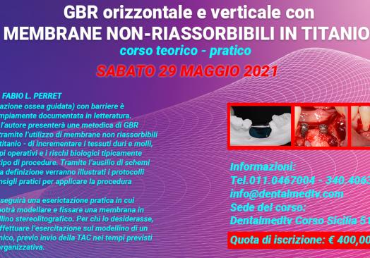 GBR orizzontale e verticale con membrane non – riassorbibili in Titanio