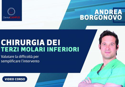 LA CHIRURGIA DEI TERZI MOLARI- Dott. Andrea Borgonovo